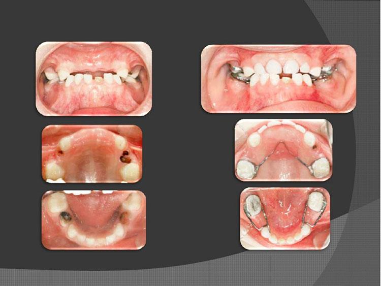 mala posición de los dientes
